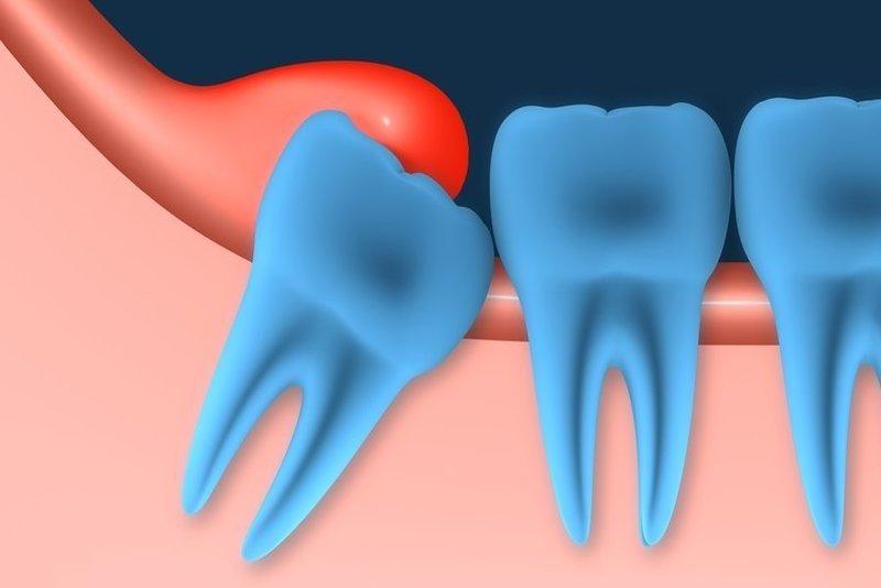 tình trạng phần lợi phía trong hàm bao phủ bên trên bề mặt răng khôn, làm cho răng khôn bị mắc kẹt lại và ngăn cản quá trình răng khôn phát triển