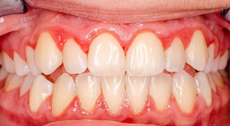 Viêm lợi tụt lợi là hiện tượng lợi sưng viêm có xu hướng bị tụt xuống phía của chân răng
