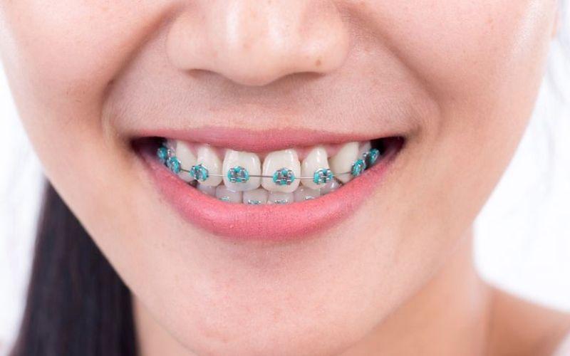 Niềng răng bị viêm nha chu là vấn đề thường thấy
