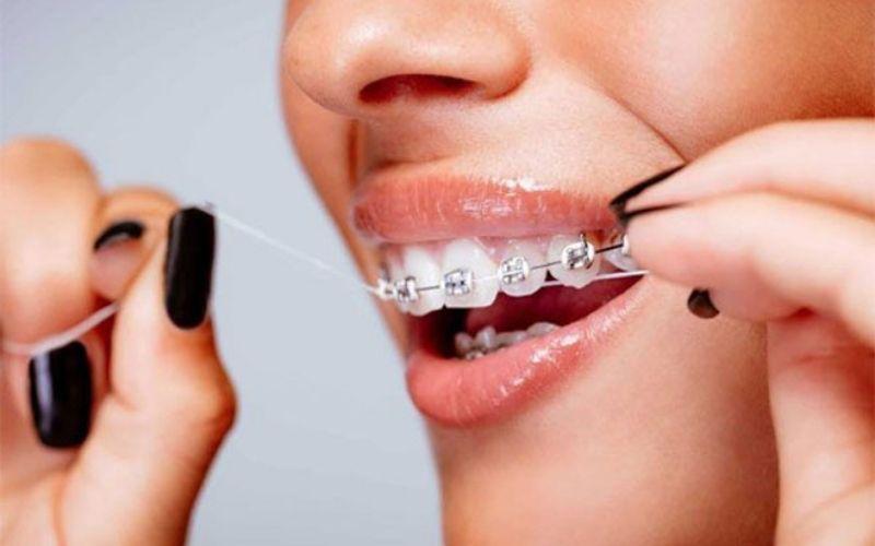 Nếu điều trị triệt để viêm nha chu, bạn vẫn có thể niềng răng như bình thường