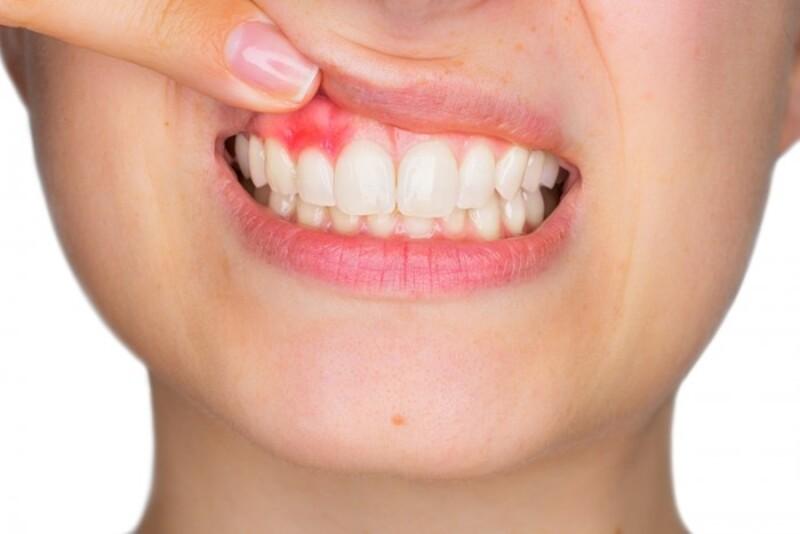 Viêm nướu chân răng là bệnh lý gây ra những ảnh hưởng nghiêm trọng đến sức khỏe răng miệng và cơ thể