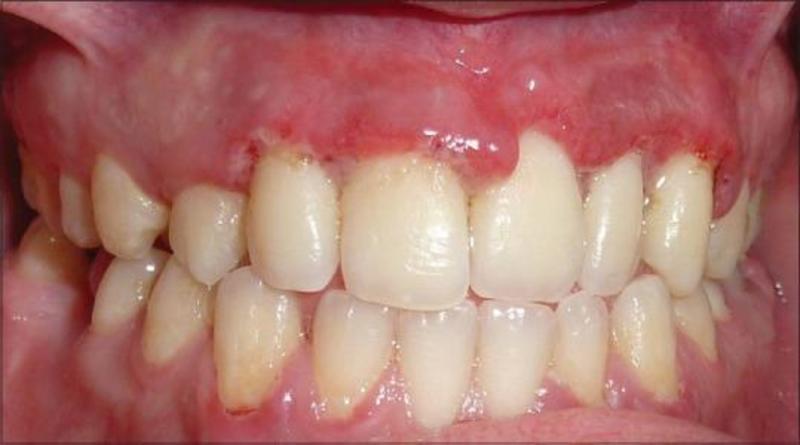 Đây là tình trạng chung gây nhiễm trùng nướu răng tiến triển rất nhanh chóng do sự tích tụ bởi vi khuẩn có trong khoang miệng