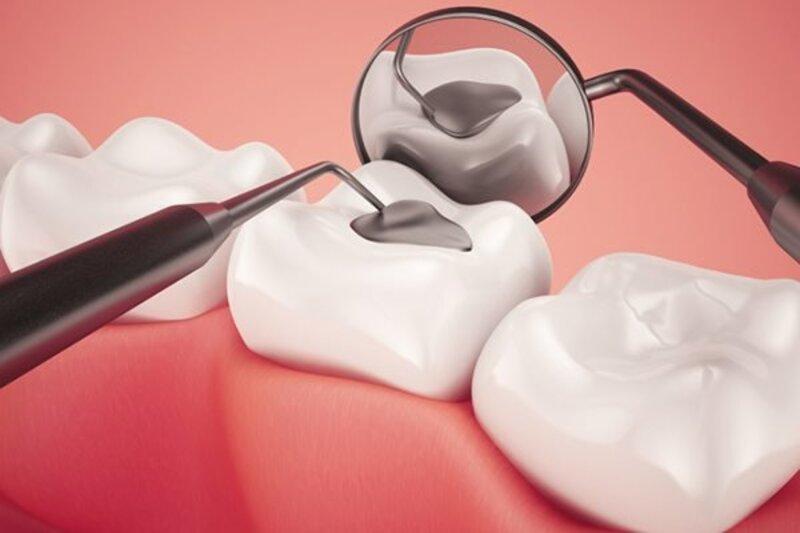 Việc hàn trám răng sâu nếu không cần sử dụng đến thuốc tê