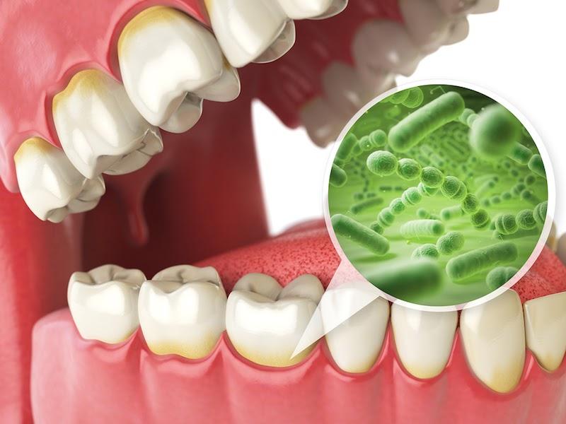 Dầu dừa có thể loại bỏ được vi khuẩn gây hại có trong khoang miệng