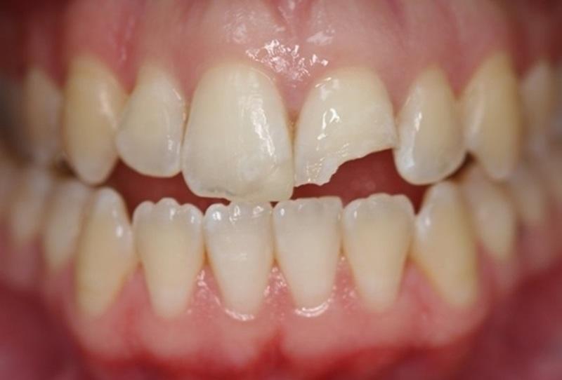 Khả năng chống lại tình trạng sâu răng ở mỗi người còn do kết cấu răng