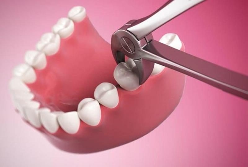 Trong trường hợp bệnh nặng bác sĩ sẽ phải nhổ răng