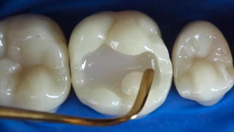 Hàn răng để có thể loại bỏ đi những vi khuẩn có trong khoang miệng