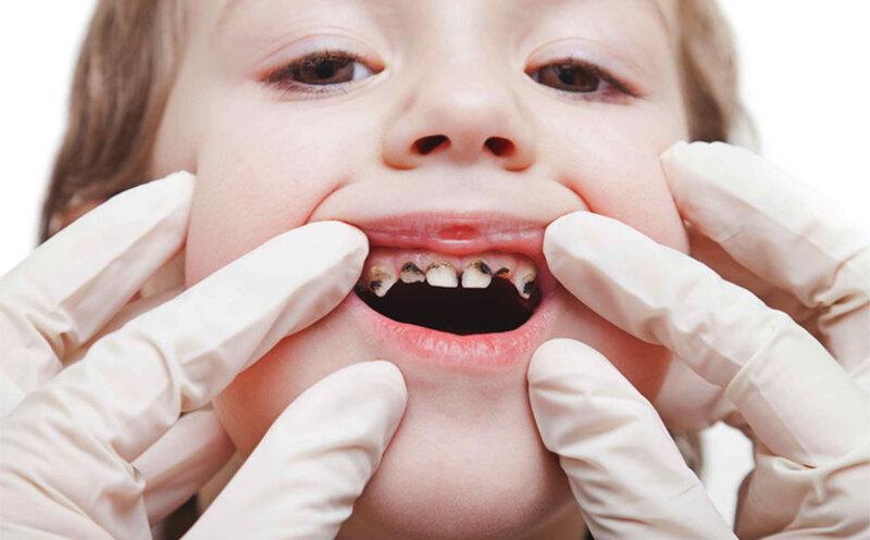 Tình trạng sâu răng nhẹ thường dễ xuất hiện ở trẻ em hơn người lớn