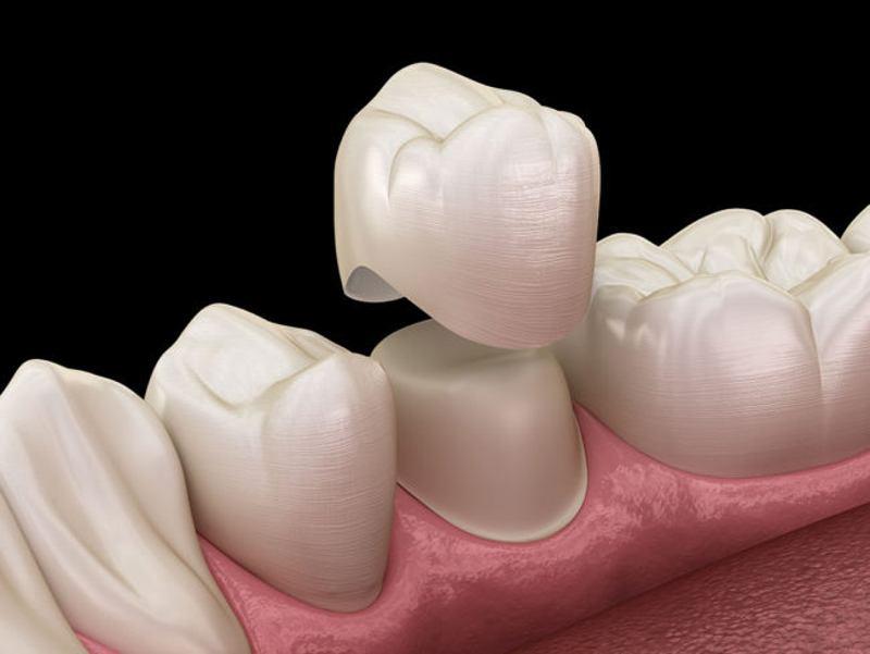 Khi răng số 6 bị hư hại nặng người bệnh có thể bọc răng sứ để bảo tồn răng.