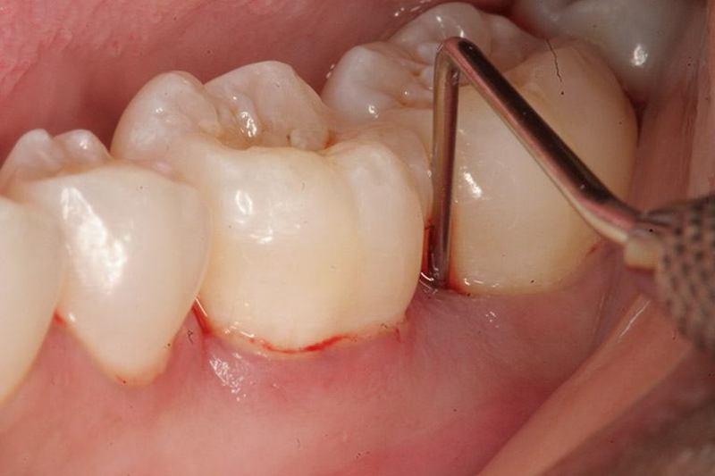 Sưng nướu răng khôn cần được điều trị kịp thời để tránh những biến chứng xấu xảy ra.