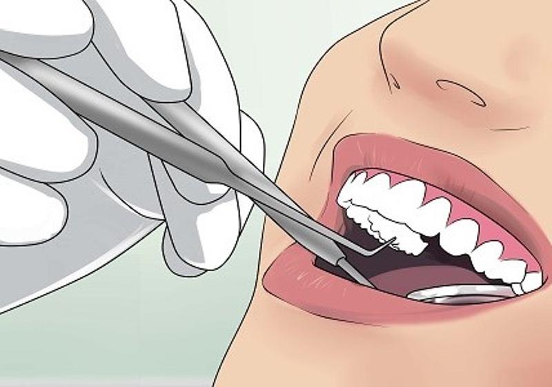Biện pháp tách nướu được sử dụng trong trường hợp răng khôn chưa nhú hoặc mới nhú một phần.