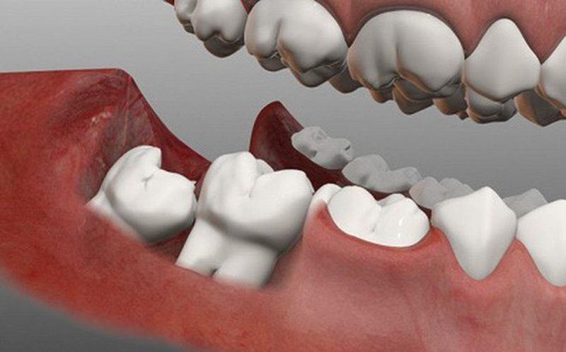 Bác sĩ sẽ tiến hành nhổ răng khôn nếu răng khôn mọc lệch gây ra sưng nướu và nổi hạch.