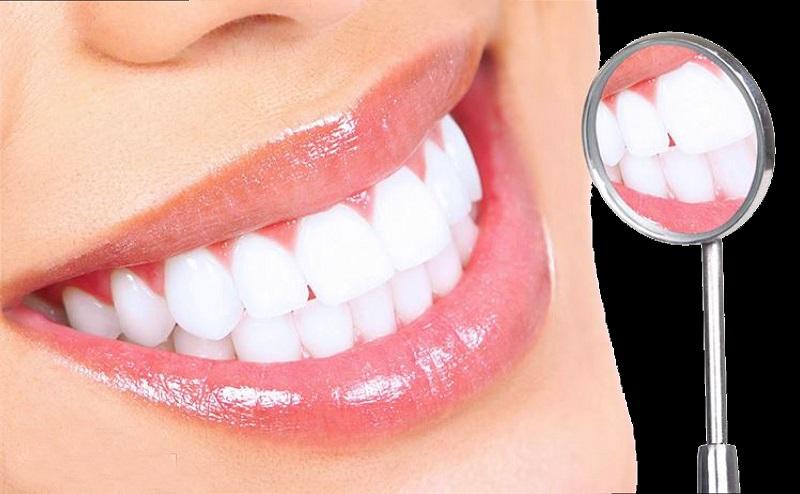 Tẩy trắng răng giúp răng trắng sáng hơn bằng việc sử dụng thuốc tẩy trắng