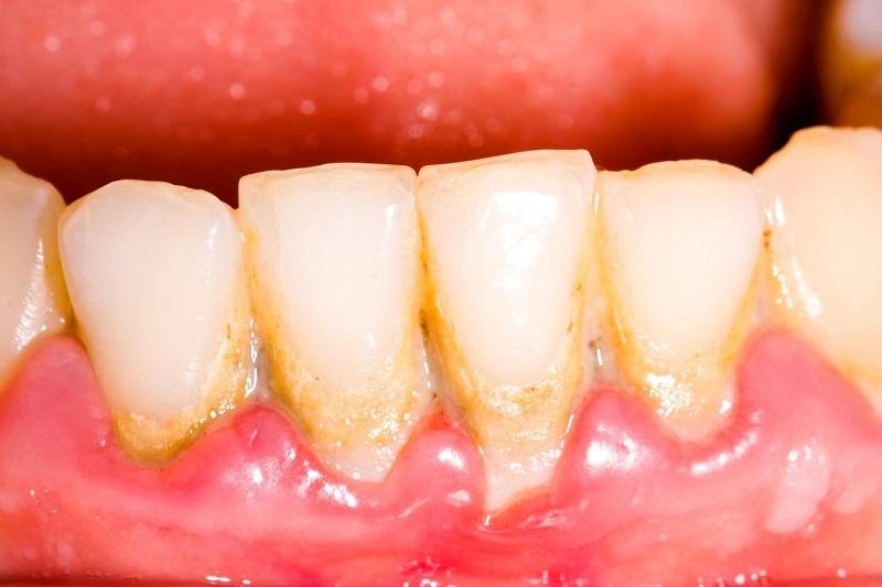 Nền răng yếu khiến tỉ lệ kích ứng bởi thuốc tẩy trắng răng cao hơn