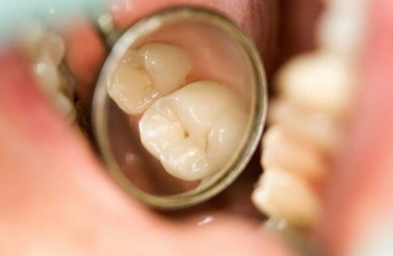 Amalgam là vật liệu có màu đen được sử dụng lâu đời
