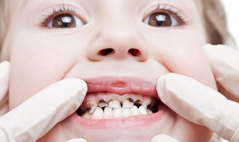Sâu răng sữa sớm là hệ quả của việc trẻ mọc răng muộn