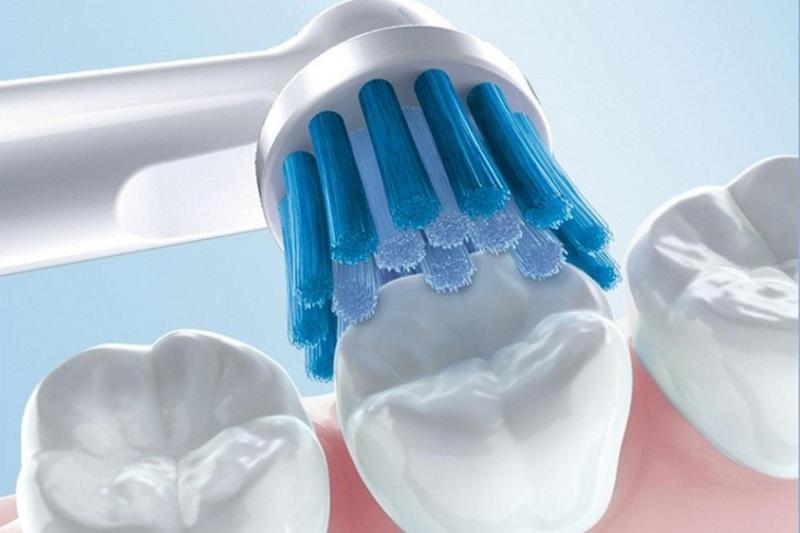 Việc vệ sinh răng miệng kém làm gia tăng nguy cơ viêm nướu răng sứ