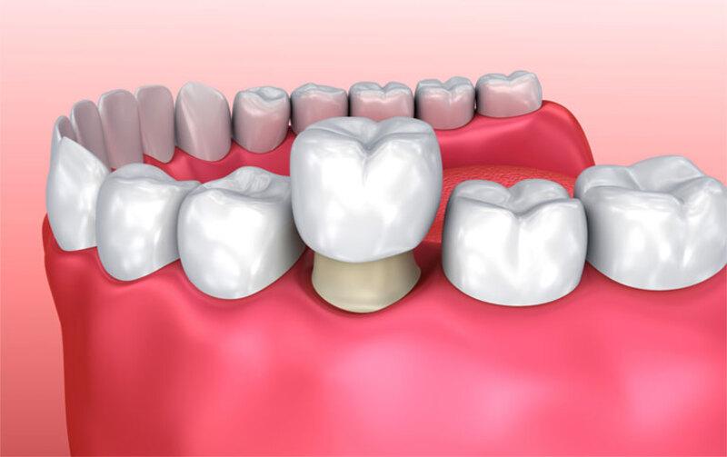 Cần phải bảo vệ răng miệng khi bị viễm nhiễm