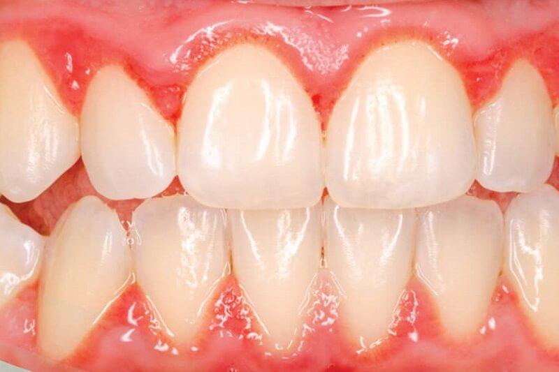 Đây là nguyên nhân dẫn đến tình trạng hôi miệng và chảy máu chân răng