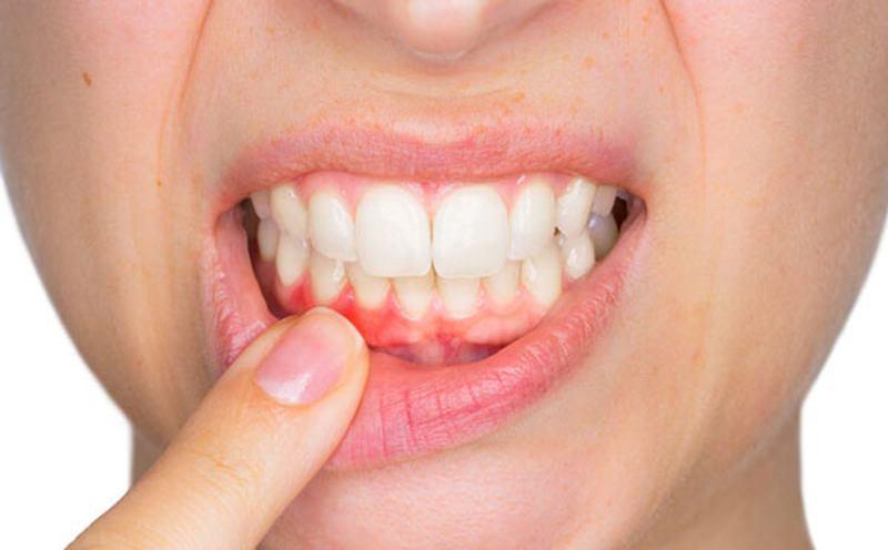 Viêm nướu răng - Nguyên nhân, biểu hiện và cách khắc phục