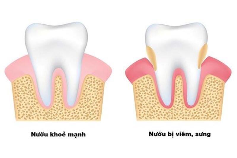 Viêm nướu răng ở trẻ cũng có thể do vi rút coxsackie