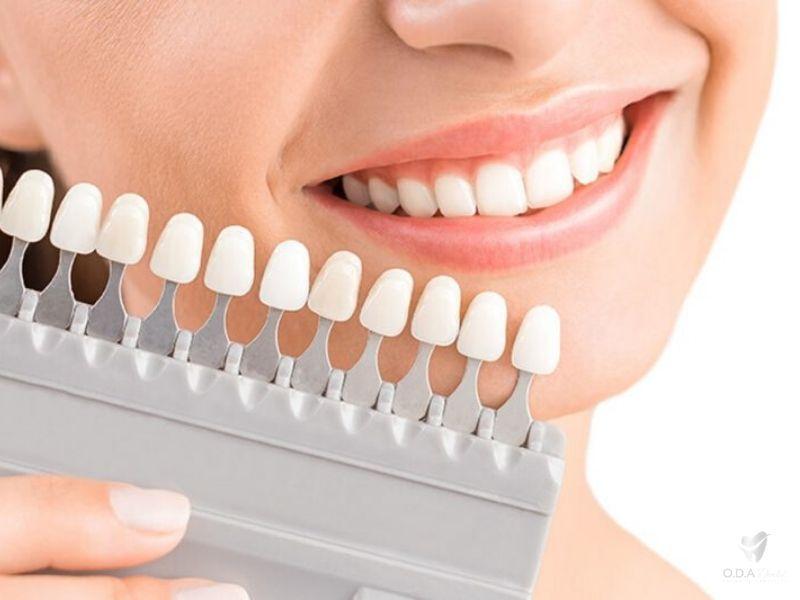 Bọc răng sứ giá rẻ nhưng vẫn đẹp phụ thuộc vào tay nghề bác sĩ