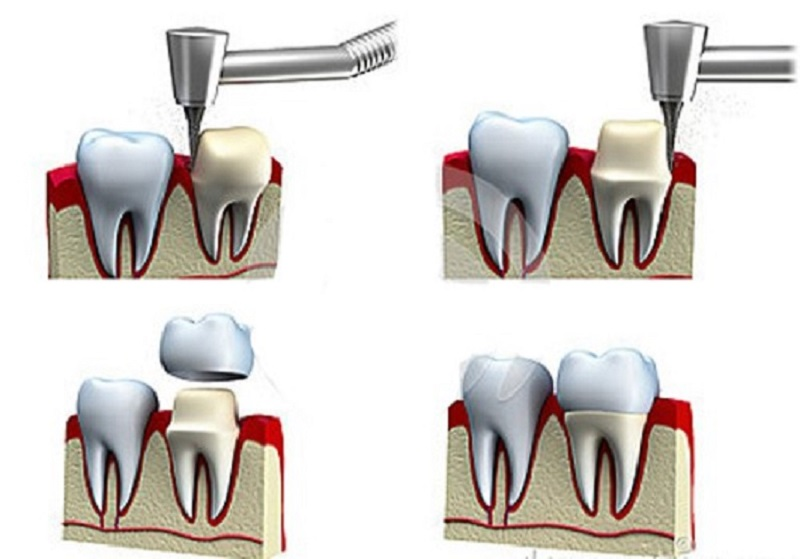 Hình ảnh minh họa thao tác mài cùi răng