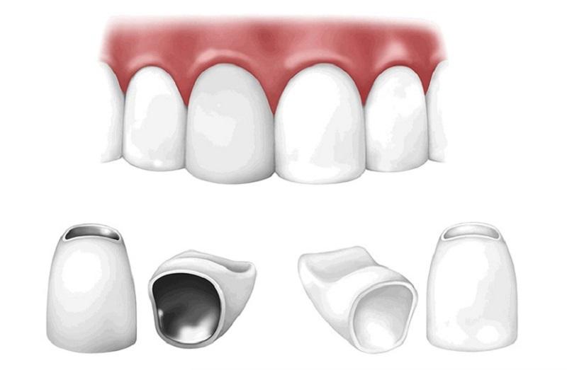 Chi phí bọc sứ răng khểnh phụ thuộc nhiều vào chất liệu răng sứ