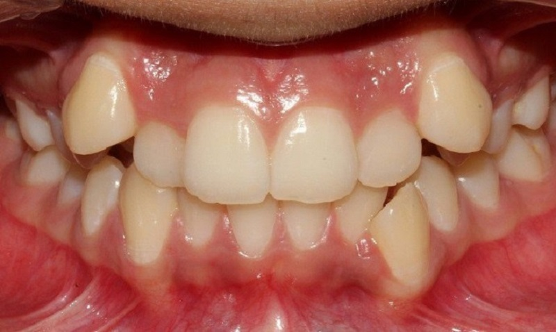 Bọc răng sứ cho răng khểnh được áp dụng khi răng bị khểnh ở mức độ nhẹ và trung bình