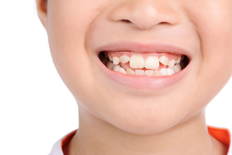 Răng nếu như chỉ mọc lệch ở mức độ nhẹ mới có thể cải thiện bằng kỹ thuật bọc răng sứ
