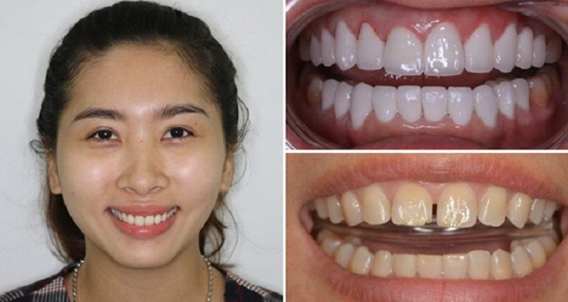 Hình ảnh trước và sau khi bọc răng sứ cho răng thưa
