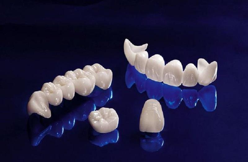 Hình ảnh răng toàn sứ ZIRCONIA