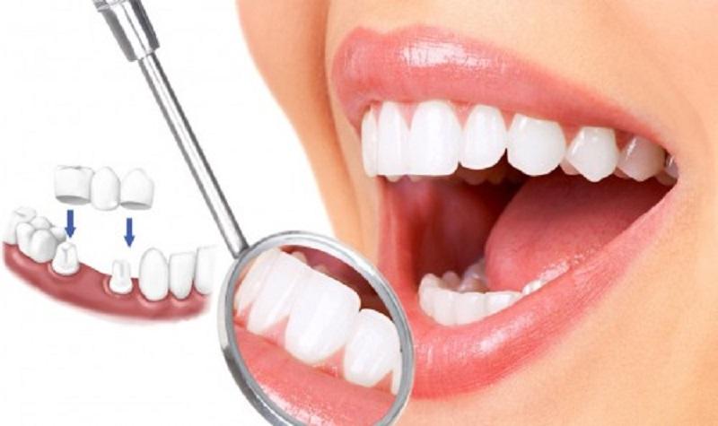 Răng sau khi được bọc sứ vừa đảm bảo tính thẩm mỹ vừa cải thiện khả năng ăn nhai