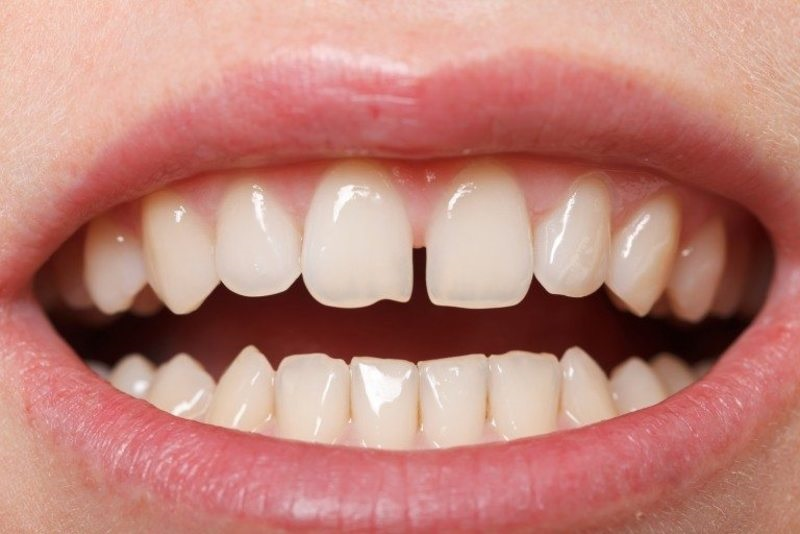 Răng của bị thưa là trường hợp nên bọc răng sứ