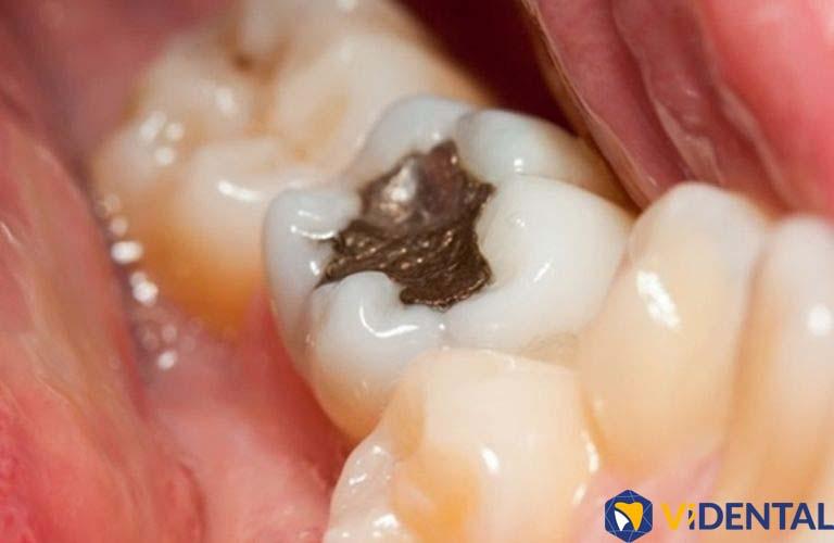Kỹ thuật trám răng hiện đại, đem lại độ bền chắc và tính thẩm mỹ cao