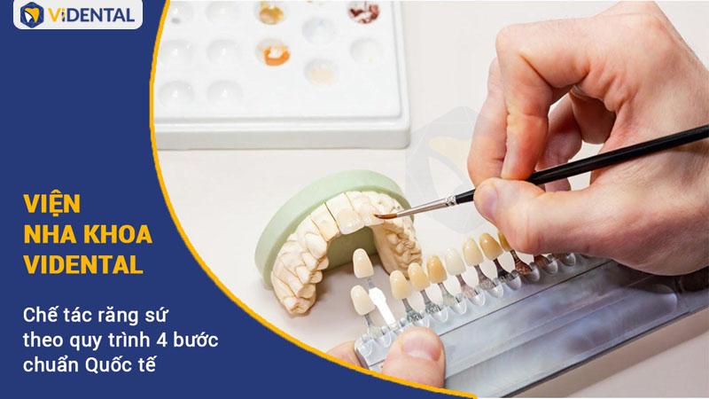 Vidental chế tác răng sứ chất lượng cao