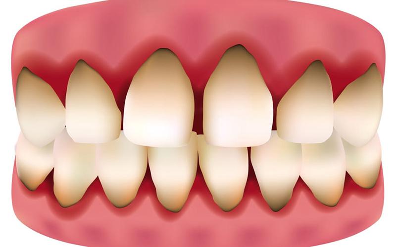 Các răng được hình thành trong xương hàm trước khi sinh ra