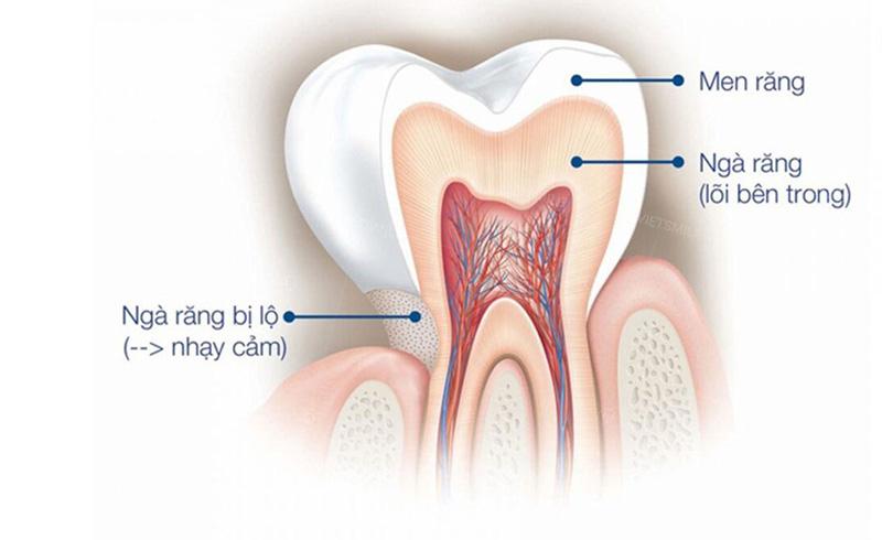 Ngà răng là một lớp cứng dày và nằm dưới lớp men răng
