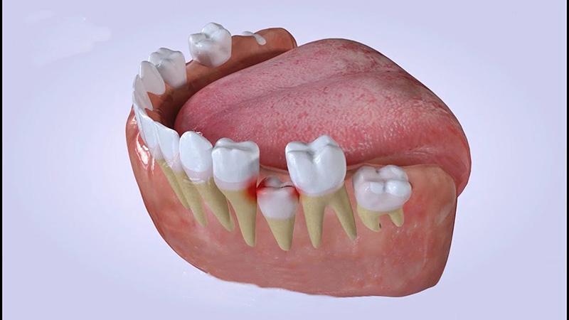 Khoảng 12 - 13 tuổi răng sữa sẽ rụng dần