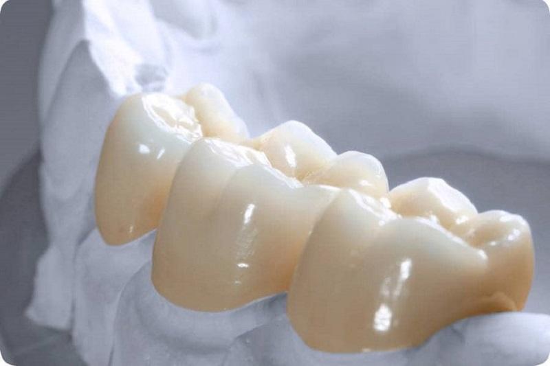 Răng sứ Zirconia là loại răng toàn sứ cao cấp, được áp dụng phổ biến hiện nay
