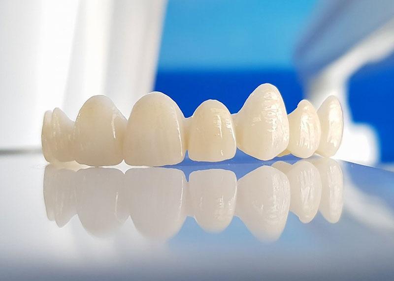 Răng giả được làm từ chất liệu Zirconia có độ bền chắc cực cao