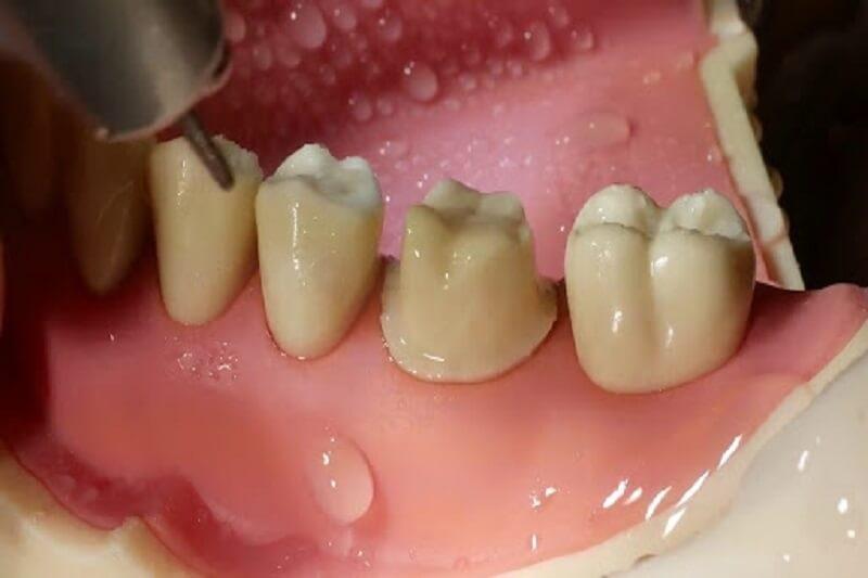 Mài cùi răng là công đoạn rất quan trọng trong quy trình bọc răng sứ
