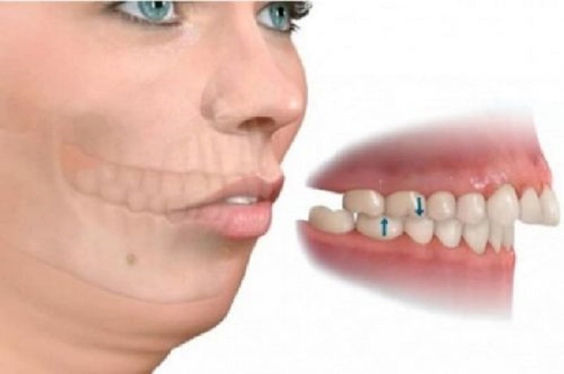 Bọc răng sứ cho răng hô có hiệu quả không là băn khoăn của nhiều người