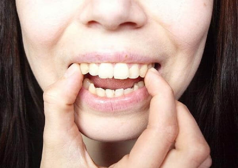Răng hô ở mức độ nhẹ hoàn toàn có thể bọc răng sứ để điều chỉnh