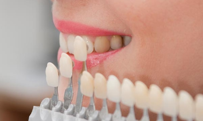 Chế tác mão răng sứ đòi hỏi sự chuẩn xác