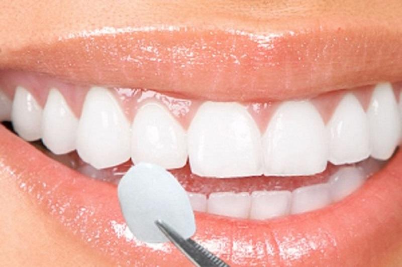 Chất liệu làm mão răng quyết định chính đến mức giá chỉnh nha