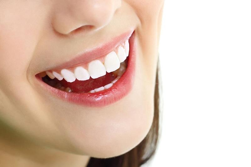 Bọc răng sứ nguyên hàm có thể mang lại cho bạn nụ cười tự tin, rạng rỡ hơn