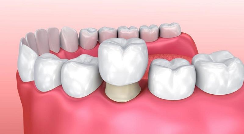 Phương pháp bọc răng sứ có thể khắc phục khiếm khuyết răng hiệu quả