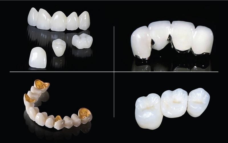 Chất liệu răng sứ quyết định nhiều đến giá thành thực hiện