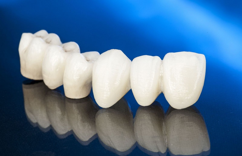 Quy trình làm răng sứ chuẩn y khoa sẽ bao gồm 5 bước